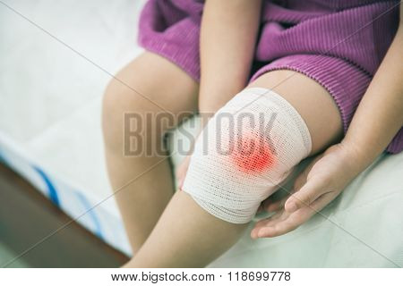 Child Injured. Wound On The Child's Knee With Bandage.