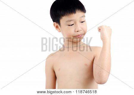 Boy Wound