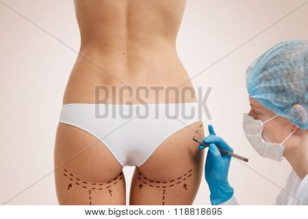 Cellulite Cut Out. Conceptual Image, Plastic Surgery Concept. Beautician Touch And Draw Correction L