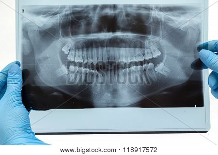 Dental X-ray / Radiography