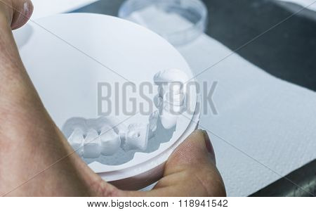 Dental Technician Is Extracting Teeth In The Zirconia Disc.