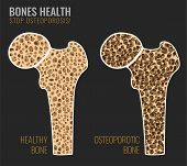 Постер, плакат: Osteoporosis Cross Section Image Osteoporosis Bone And Healthy Bone In Comparison Isolated On A Dar