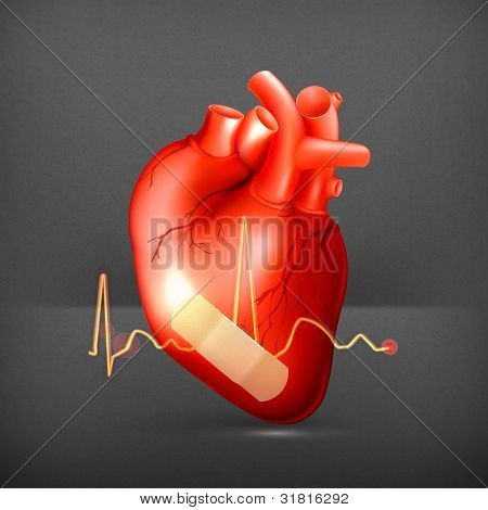Damaged heart, vector