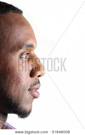 Teenage african-american with few acnes on his face