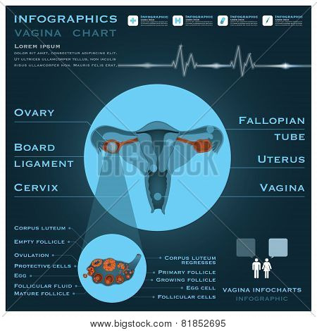 Uterus And Vagina Infographic Infocharts Health And Medical