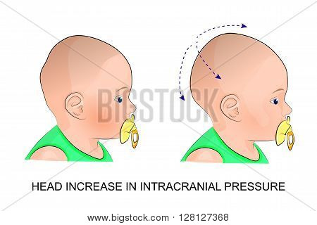 illustration of child head with intracranial pressure