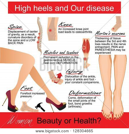 Infografics .High heels and Our disease. Vector illustration.