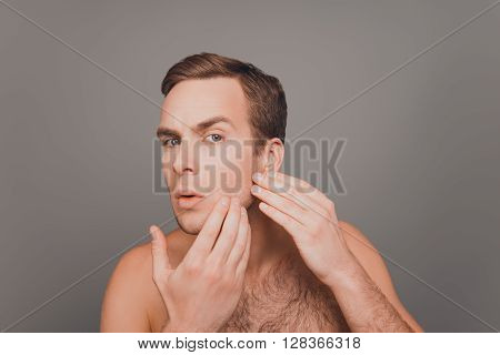 Handsome Young Man Touching His Face And Crushing Pimple