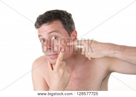 Handsome Man Touching His Skin With Finger