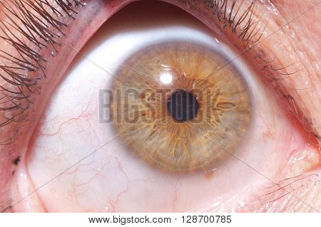 Close Up On The Iris Of The Eye