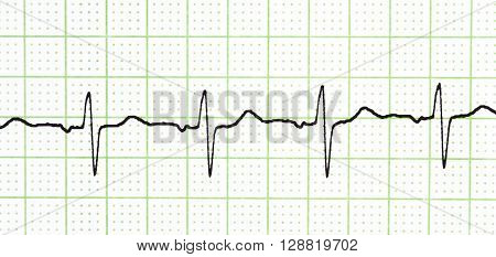 Electrocardiogram test that shows electrical activity of the heart.