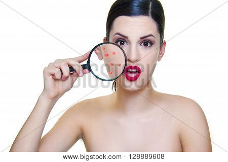 girl with dark hair and problematic skin with acne magnifier