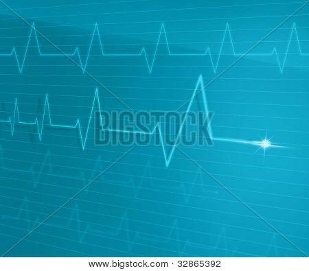 Línea de EKG