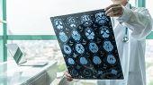 Brain Disease Diagnosis With Medical Doctor Seeing Magnetic Resonance Imaging (mri) Film Diagnosing  poster