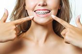 Orthodontic Treatment. Dental Care Concept. Beautiful Woman Healthy Smile Close Up. Closeup Ceramic  poster