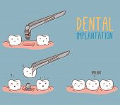 Постер, плакат: Comics about tooth replacement Vector illustration for children dentistry and orthodontics