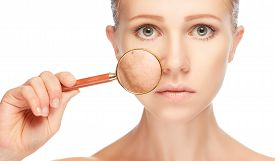 pic of freckle face  - concept skincare - JPG