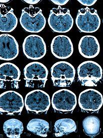image of frontal lobe  - MRI scan of the human brain  - JPG