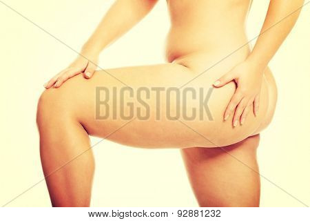 Fat women legs with overweight