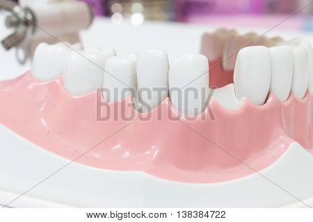 Closeup Dental Model of Teeth  dentist .