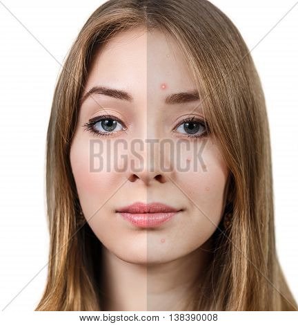 Young woman with problem skin before and after treatment isolated on white.