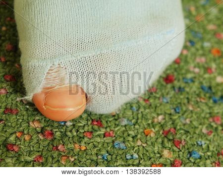 Children thumb sticking out from socks hole. Green carpet in background