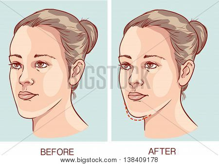 vector illustration of a Underbite Jaw surgery