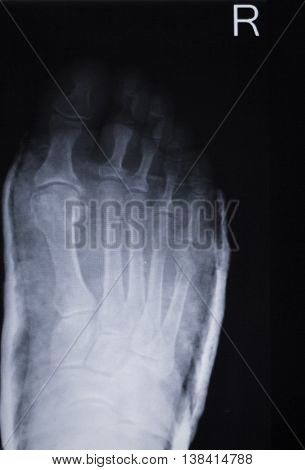 Foot Injury Toes Xray Scan