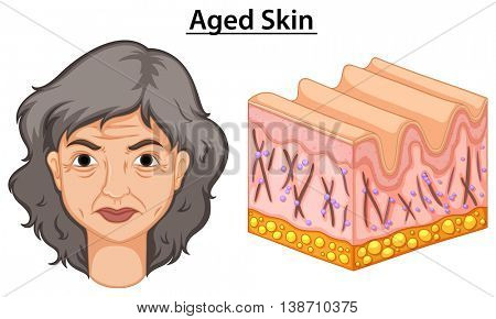 Diagram showing woman with aged skin  illustration
