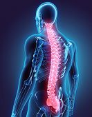 Постер, плакат: 3D Illustration Of Spine Medical Concept