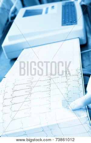 Cardiogram Recording In The Hospital