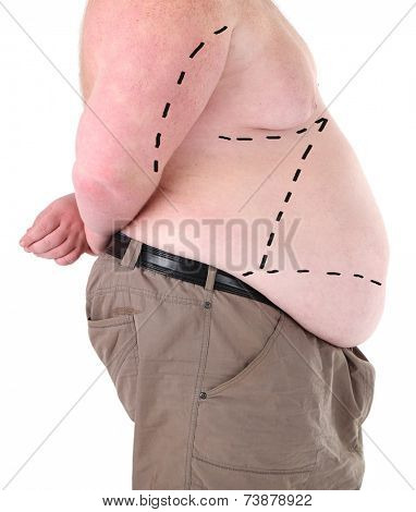 Fat man marked with lines for abdominal cosmetic surgery isolated on white