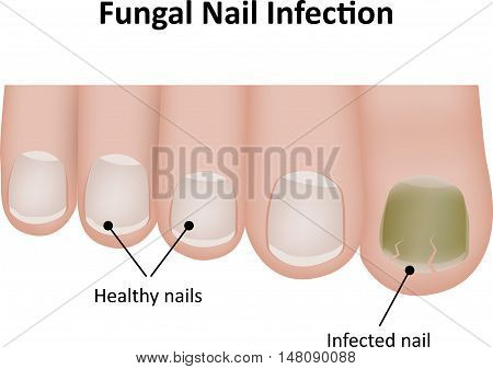 Fungal Nail Infection is a condition that commonly affects the toe nails