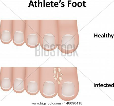 Athlete's foot, a common condition that often effects the toes