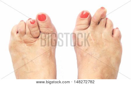 Foots look like after six operations due to doctor mistake