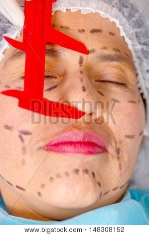Closeup womans face preparing for cosmetic surgery with lines drawn on skin doctor measuring using tool, as seen from above.