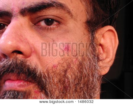 Close Up Of A Man With Skin Malady -2