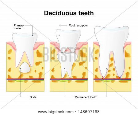 primary tooth and permanent tooth. illustration shows permanent tooth located below the deciduous tooth prior to exfoliation. Tooth Eruption. Baby teeth are lost due to the pressure of the permanent teeth erupting from below.