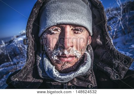 The man is face covered with ice