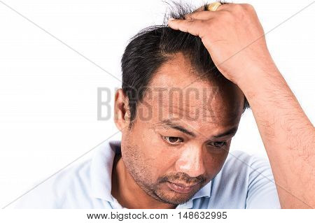 young man show bald on head on white background