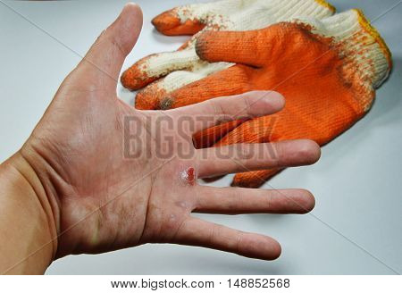 blister on hand because do not wear safety glove