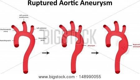 Ruptured Abdominal Aortic Aneurysm illustration aka AAA