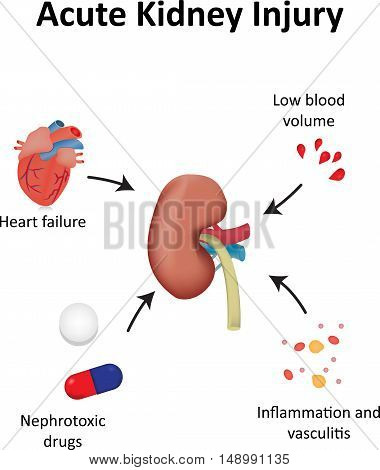Acute Kidney Injury Diagram Illustration Renal System