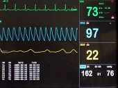 picture of bp  - ecg screen display  - JPG