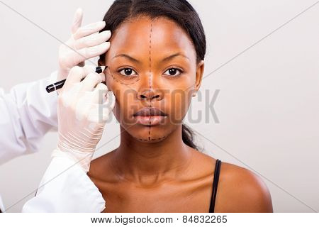 cosmetic surgeon drawing lines on african girl face for plastic surgery