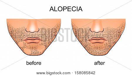illustration of alopecia areata on the male chin