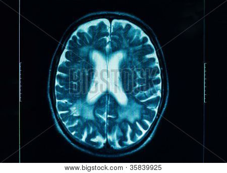 Closeup of a ct scan in blue colors