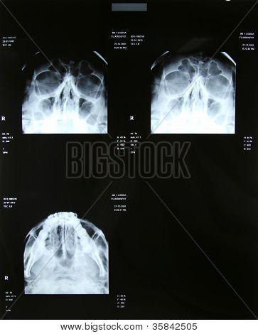 Sinus Xrays