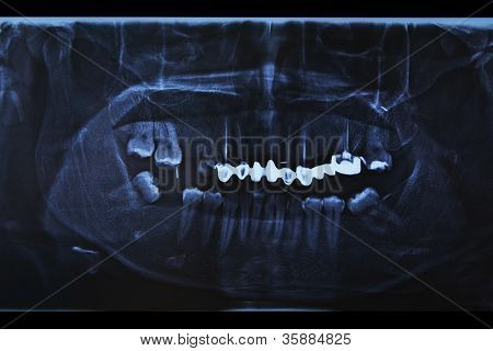 X-ray Scan Of Humans Teeth