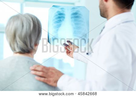 Image of senior patient and doctor looking at x-ray in hospital